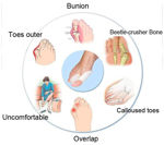 Picture of Gel Orthopedic Foot Protector Anti Crack Toe Protector   Toe Separator for Men and Women